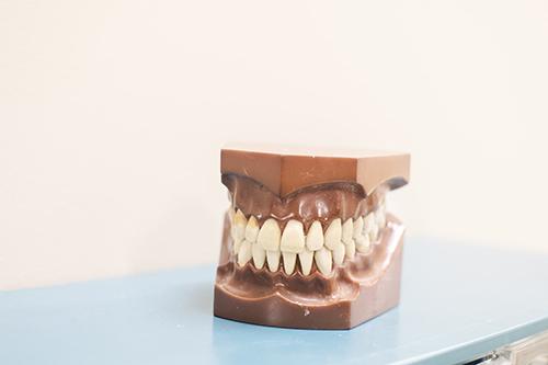 Gum Disease and Alzheimer